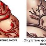Симптомы деменции и методы ее лечения