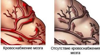 деменция в головном мозге