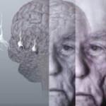 Как проявляется старческая деменция? Методы диагностики и лечения
