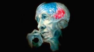 Развитие болезни альцгеймера