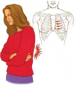 симптомы грудной невралгии