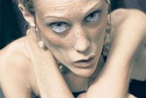 Вид человека с анорексией