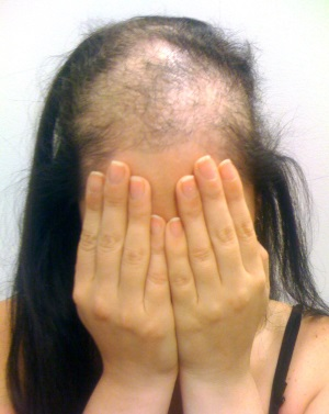 Выдёргивание волос