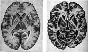 Поражения головного мозга при ЭОС