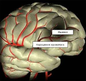 Причины сосудистой деменции