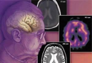 Диагностика сосудистой деменции
