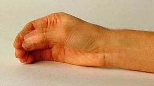 тремор при болезни Паркинсона