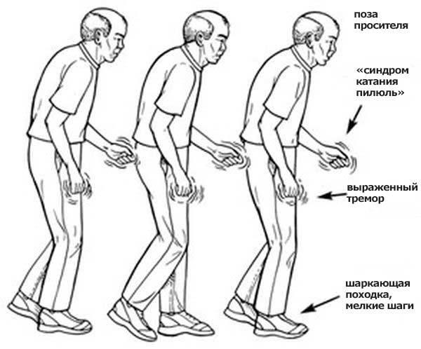 Походка при болезни Паркинсона