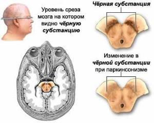Срез мозга при болезни Паркинсона